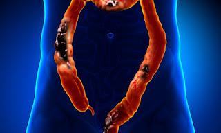Καρκίνος του παχέος εντέρου: Προσοχή - Αυτά είναι τα πρώιμα συμπτώματα