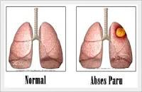 Penyakit Abses Paru-Paru