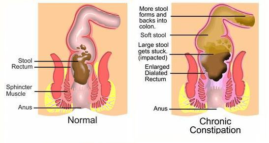 The Bromhidrosis, Leaky gas,Fecal body odorBlog Can constipation
