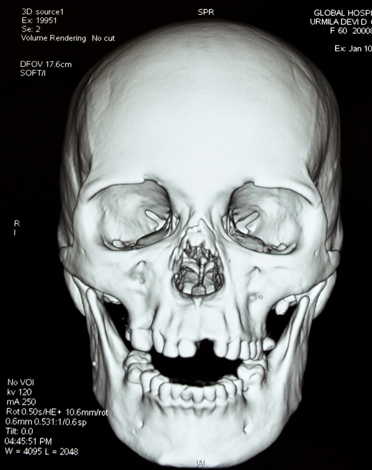 dating scan nasal bone 12 week scan - no visable nose bone  i had my 'dating scan' on  the nasal bone is usually visible at around 11-12wks and if it is not seen .