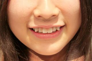 Các kiến thức hữu ích về dịch vụ niềng răng khểnh