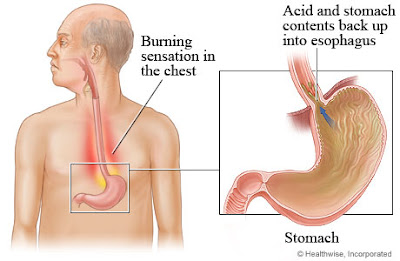 Acid Reflux Diarrhea And Vomiting
