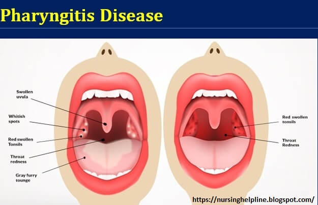 Pharyngitis disease management guidelines