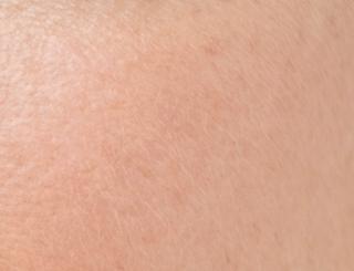 peau désydratée
