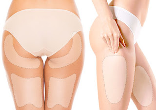 짱이뻐! - [Get to Know] Korean Body Contouring - Liposuction