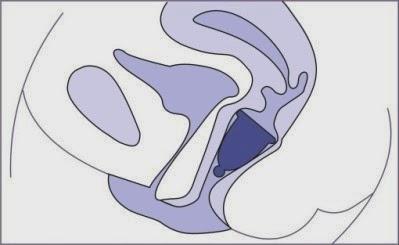Anwendung Menstruationstasse