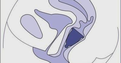 Pinkeln dem fühlt Vagina an gereizt sich nach wie Pinkelt