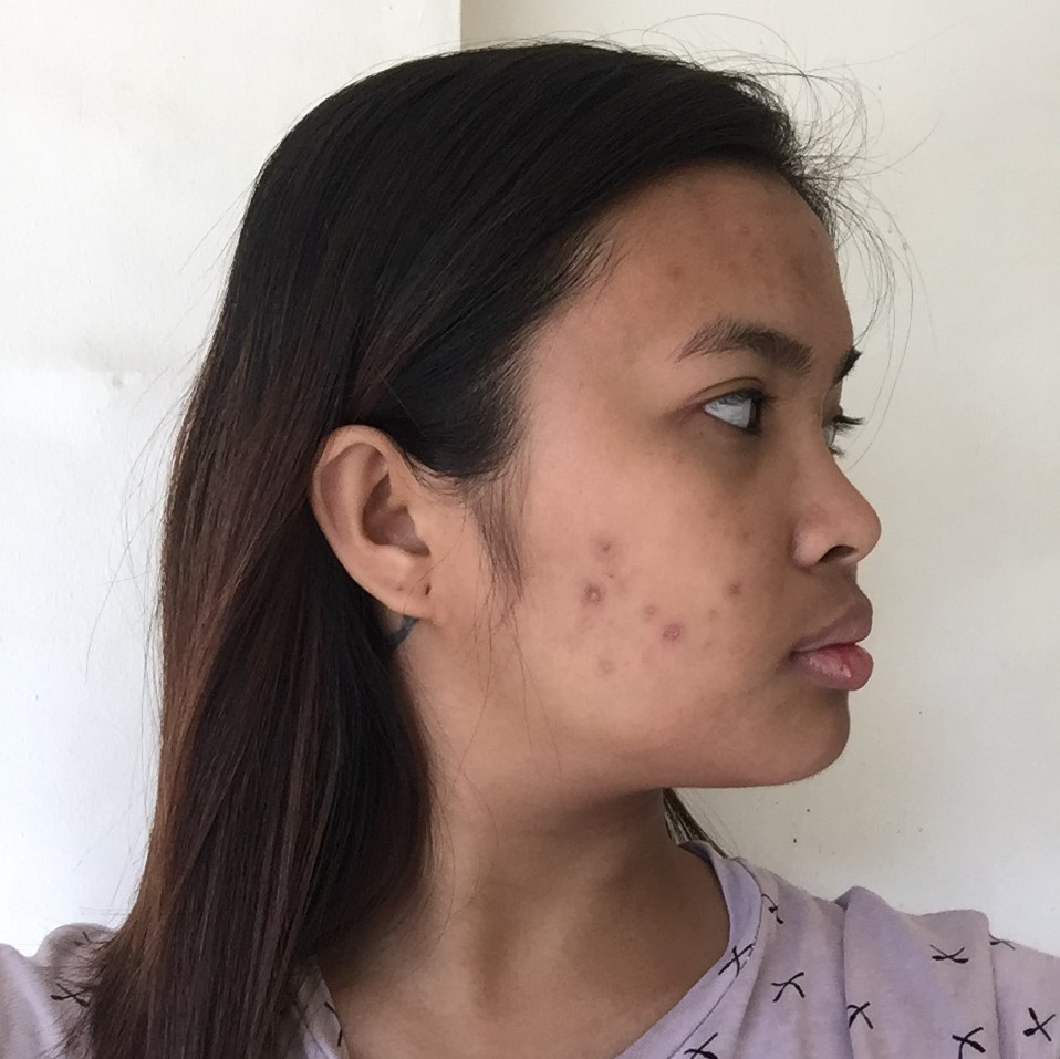 Zam Fuellos Gold Skin Treatment For Serum No More Active Acne My Doctor Said She Will Not Change The Dose Of Drug And Just Continue To Take 20mg Isotretinoin Four Months Be Back A