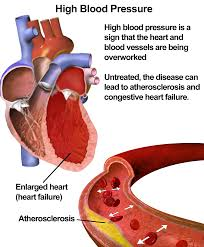 Ghpage-High Blood Pressure
