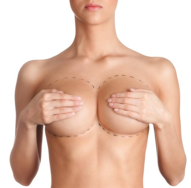 ¿En qué consiste la elevación de mamas?