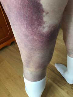 Hip-replacement-surgery-one-mans-journey-week-1-bruising-on-the-back-of-leg