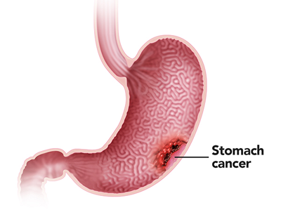 http://cancer-treatment-madurai.com/stomach-and-oesophagus-cancer.php