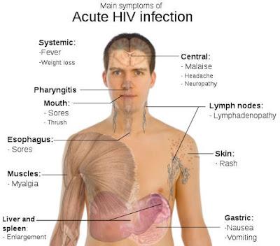 Apa penyebab Penyakit HIV AIDS