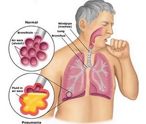 melia biyang obat TBC