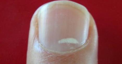Que quitan las manchas negras en la piel