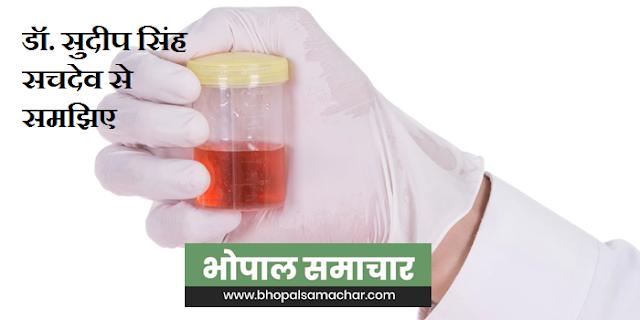 यूरिन में ब्लड क्यों आता है, कौन सी बीमारी का संकेत है | Presence of blood in urine is a sign of disease,
