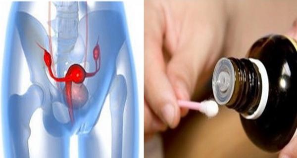chisturile ovariene pot fi eliminate si pe cale naturala