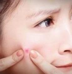 Obat Cara Mencegah dan Menghilangkan Jerawat dengan Cepat
