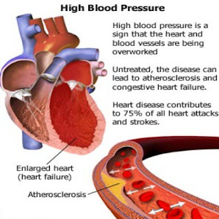 how to reverve high blood pressure to normal