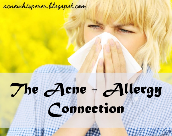 The Acne-Allergy Connection