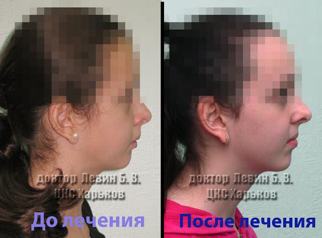 Два фото профиля пациента с прогнатическим прикусом до лечения и ортогнатическим после лечения