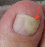 Verformte Fußnägel Bilder Fußnagelpilz. Jenn Cosmetic.