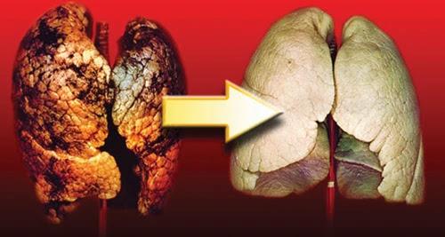 Cara Alami Membersihkan Liver