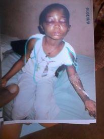 Battered Nwole Precious Being Hospitalised