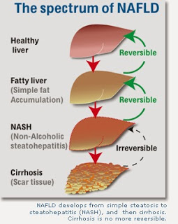 Fatty liver disease and homeopathy treatment
