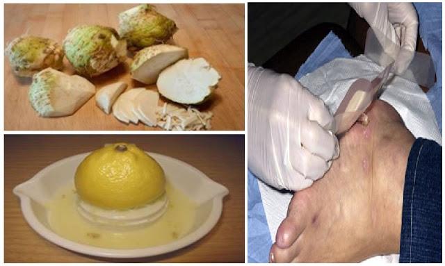 Dokter Pun Terkejut, Perpaduan 2 Bahan Ini Ampuh Sembuhkan Penderita Diabetes Tanpa Harus Oprasi !!
