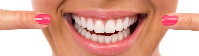 http://www.allsmilesdc.org/types-of-braces/