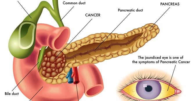 The Health Website Pancreatic Cancer