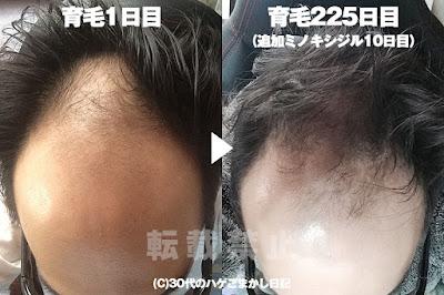 2017年1月9日の頭皮