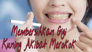 Gigi Anda Kuning Berikut Beberapa Cara Untuk Memutihkannya Tips