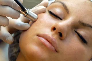 tratamiento para eliminar las cicatrices del acne