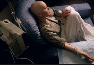 kemoterapi kanker usus