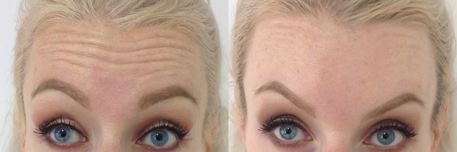 Before and after botox, forehead, Dr Mark Holmes, botox, wrinkles