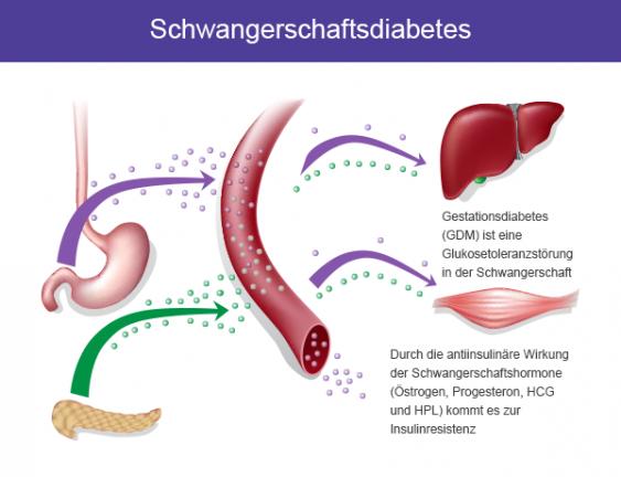 arterielle hipertonie schwangerschaftsdiabetes
