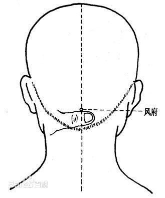 Feng Fu, acupuntura, hielo en la nuca, dolores de cabeza, salud