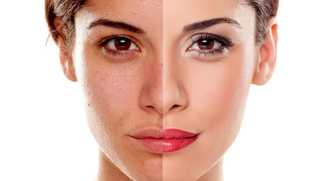 Ways to Treat Dull Skin,Home Remedies And 9 Lifestyle Habits To Get Rid Of Dull Skin,Reasons Your Skin Looks Dull