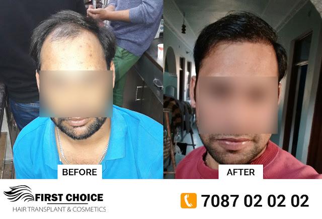 9 months hair transplant result