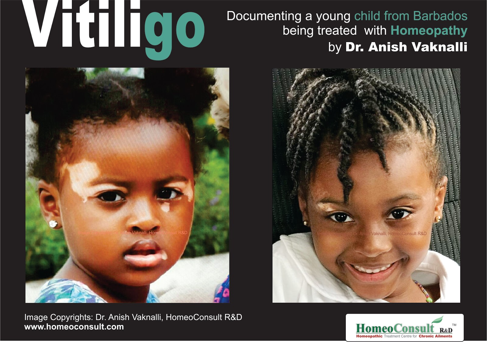 Homeoconsult Rd Best Doctor For Vitiligo Treatment With Homeopathy