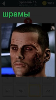 Все лицо мужчины покрыто шрамами различной величины , в том числе над бровями и около ушей