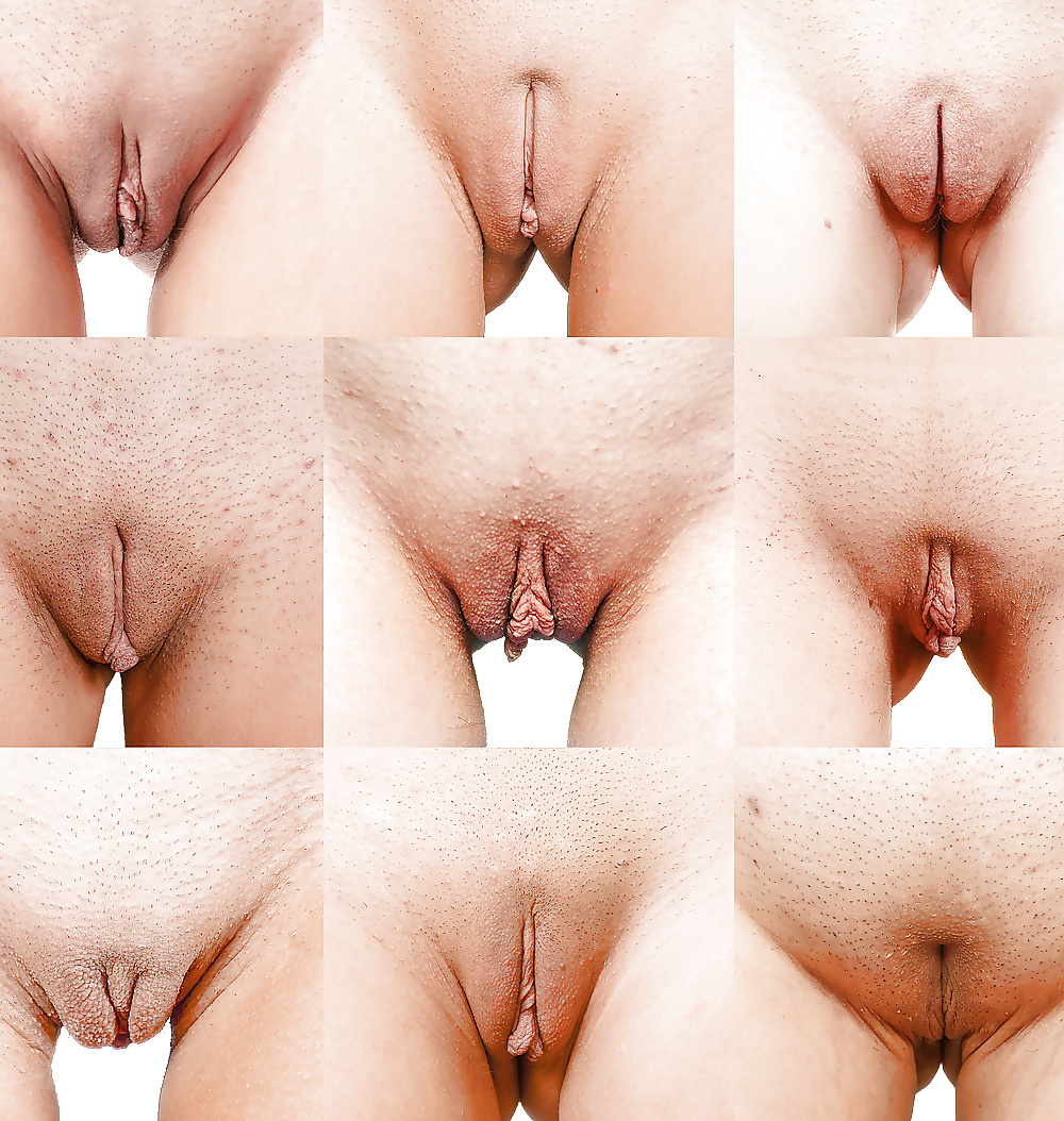 Vaginal wall pictures