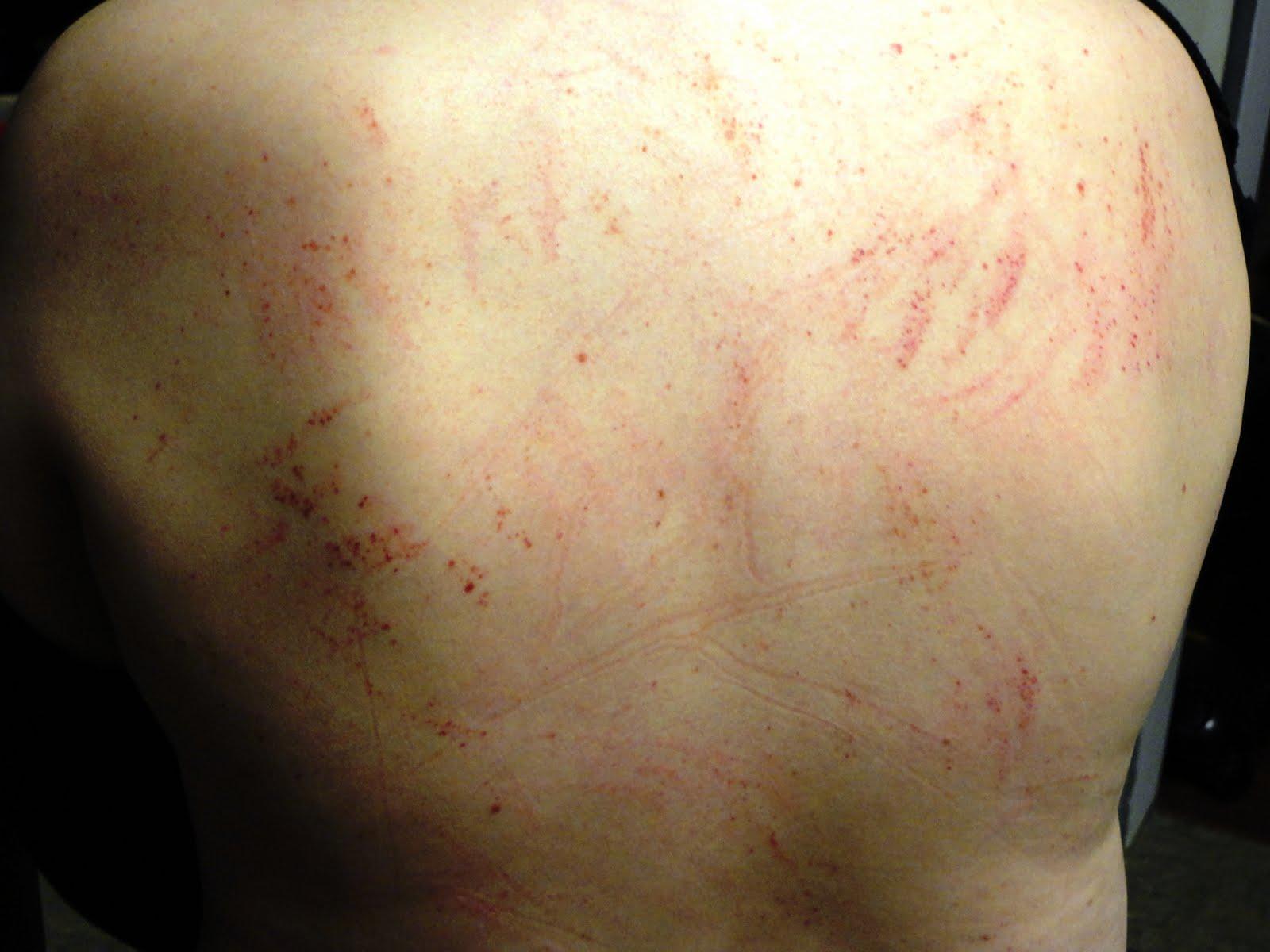 facial rashes bruising jpg 1500x1000