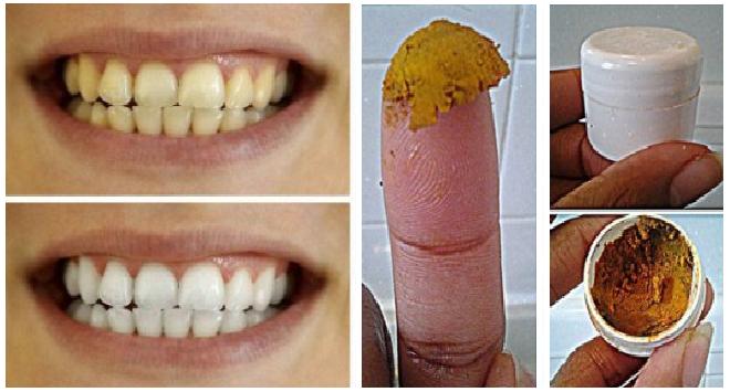 Cara Memutihkan Gigi Secara Alami Dan Cepat Dengan Baking Soda