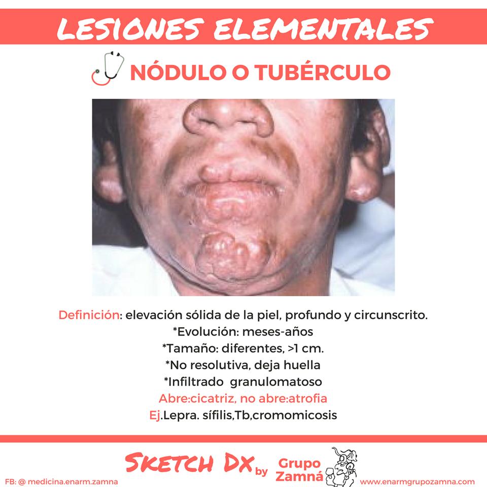 Famoso Anatomía Masculina Ardilla Colección de Imágenes - Anatomía ...