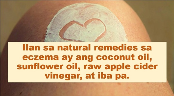 """Eczema, a condition that makes a person's skin red and itchy, is long lasting and can even be accompanied by asthma or hay fever. According to Mayo Clinic, while no cure has been found for eczema (or atopic dermatitis), there are treatments and self-care measures that can relieve itching and prevent new outbreaks.   Advertisement      There are some natural remedies for eczema:    1. Coconut oil  Applying coconut oil topically reduces the amount of staph bacteria on the skin, which in turn reduces the chance of infection.    One must apply """"virgin"""" or """"cold pressed"""" coconut oil once or twice a day to damp skin.    2. Aloe Vera  The cooling effect of aloe vera gel is very helpful to itchy skin.  People with eczema are advised to grow aloe vera so they can get the gel directly from the plant.        3. Flaxseeds  Flaxseeds, which are rich in omega-3 fatty acids, help block arachidonic acid in your body called photo  responsible for inflammation.    4. Raw Apple Cider Vinegar  In is suggested that individuals dilute it by adding one part purified water to one part apple cider vinegar.    People with very sensitive skin may need to dilute more.        5. Oatmeal   Soaking in a tub of oatmeal can help calm itchy skin.    Since itching makes eczema, it is suggested that worse the water at a lukewarm temperature.    6. Sunflower oil   Sunflower oil boosts the skin's barrier function, helping it to retain moisture.     Apply sunflower oil to adult skin twice a day. It is recommended that one of those times is shortly after bathing while skin is still wet.          7. Tea tree oil  Tea tree oil treats a variety of skin conditions due to its anti-inflammatory, antiseptic, and nourishing properties.Tea tree oil used in the combination of olive oil can help in curbing the itching and soften dried skin.    For more details, one may watch this video:         Read more: WHAT YOU NEED TO KNOW: AVOCADO HAS GLUTATHIONE   7 NATURAL REPELLENTS THAT PROTECT YOU AGAINST DENGUE, OTHER MOS"""