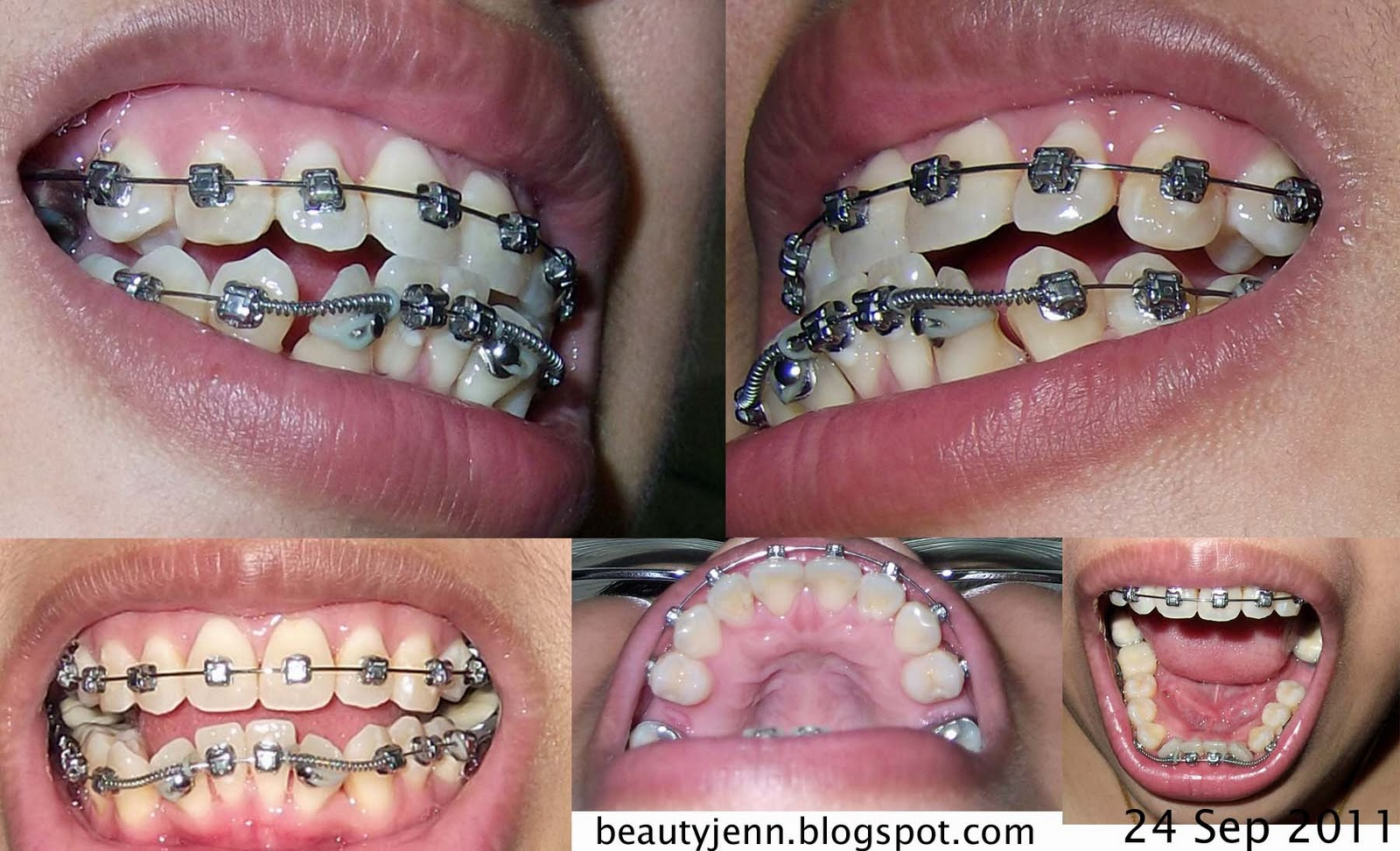 My Life S Inspirations Damon Braces Update