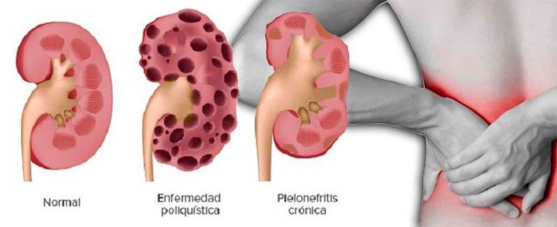 El tratamiento varikoza en krasnodare